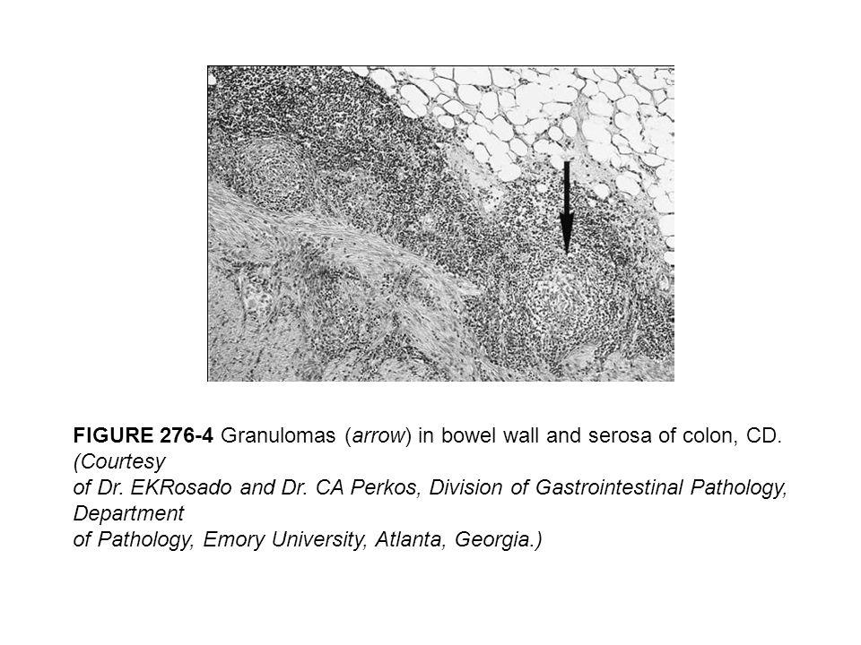 FIGURE 276-4 Granulomas (arrow) in bowel wall and serosa of colon, CD