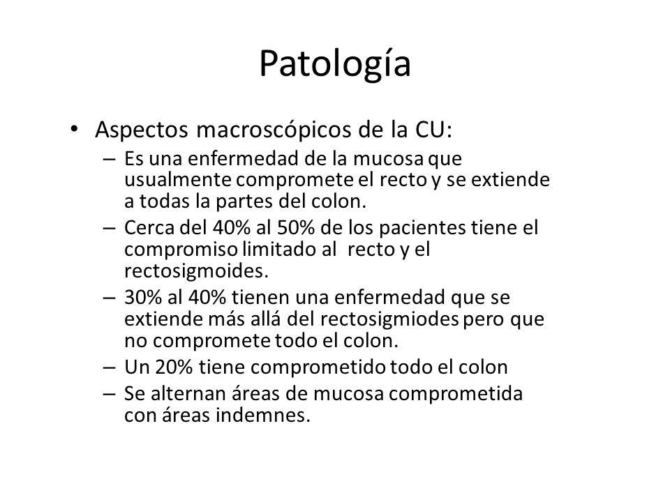 Patología Aspectos macroscópicos de la CU: