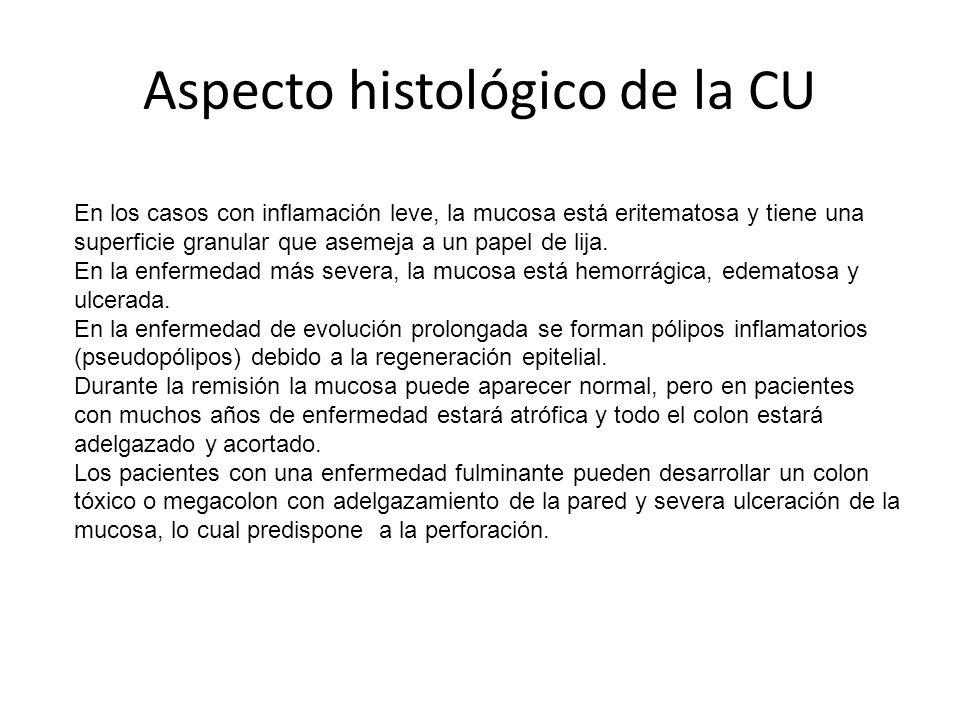 Aspecto histológico de la CU