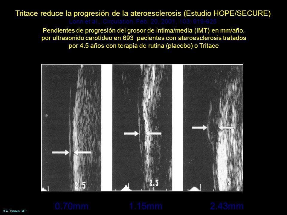 Tritace reduce la progresión de la ateroesclerosis (Estudio HOPE/SECURE)