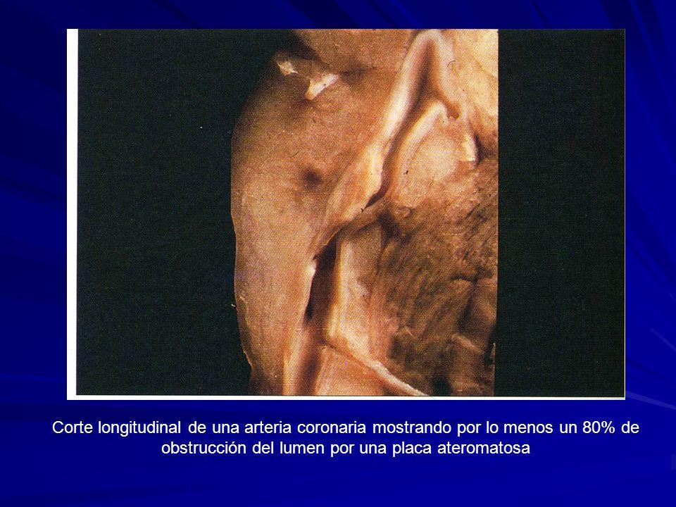 Corte longitudinal de una arteria coronaria mostrando por lo menos un 80% de obstrucción del lumen por una placa ateromatosa