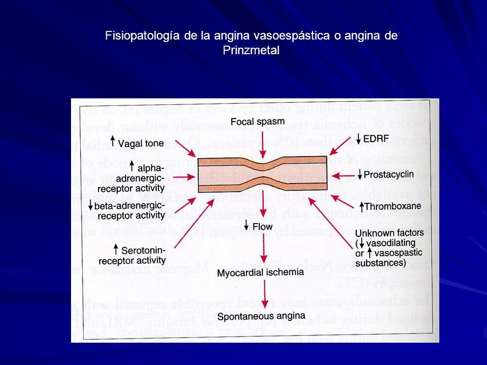 Fisiopatología de la angina vasoespástica o angina de Prinzmetal