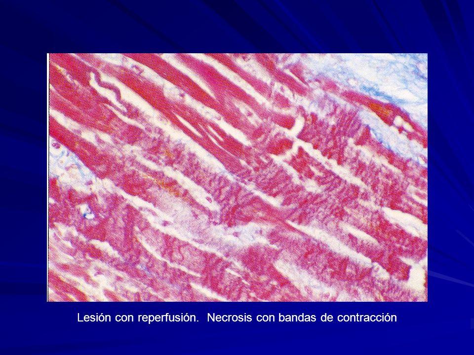 Lesión con reperfusión. Necrosis con bandas de contracción