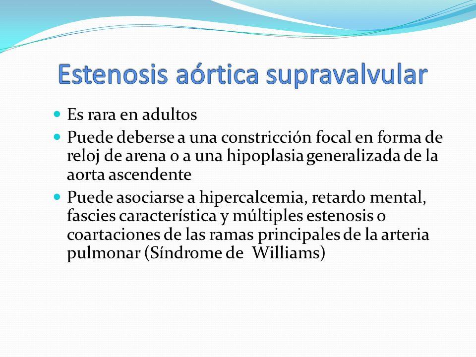 Estenosis aórtica supravalvular