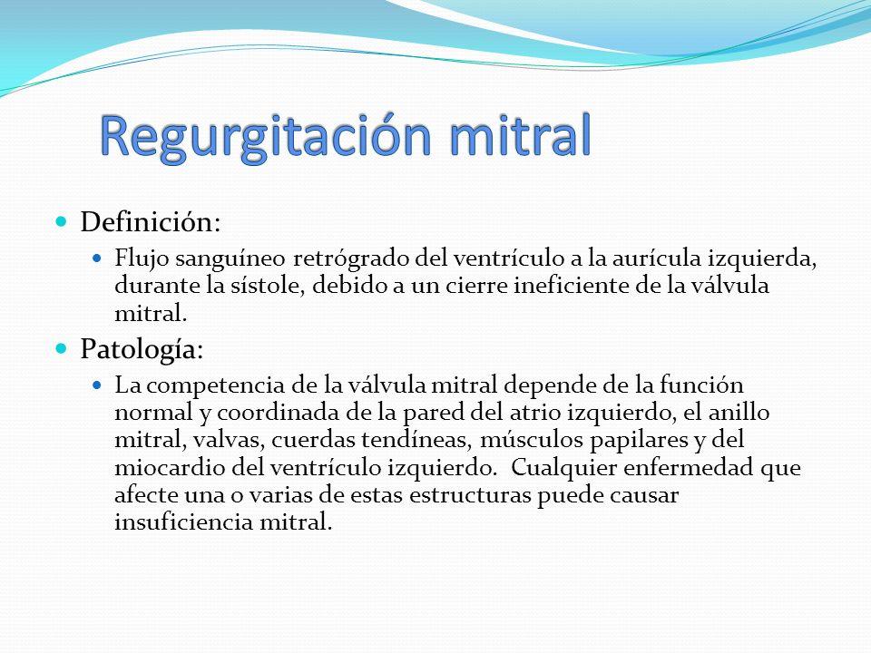 Regurgitación mitral Definición: Patología:
