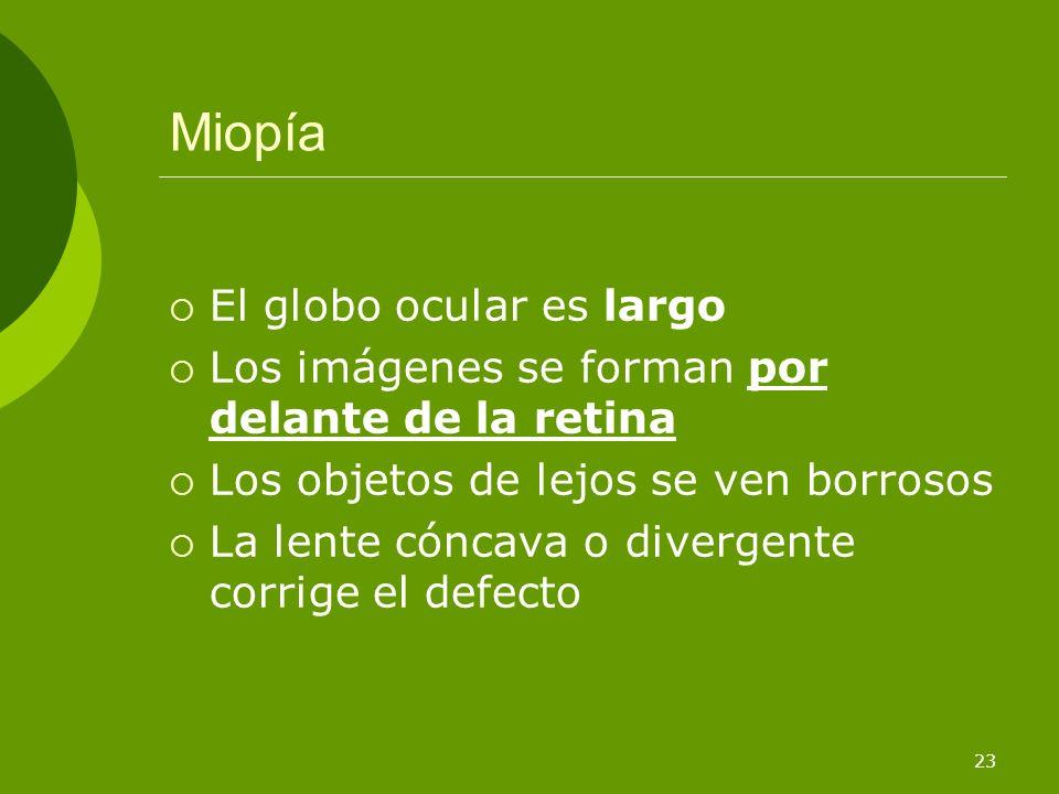 Miopía El globo ocular es largo