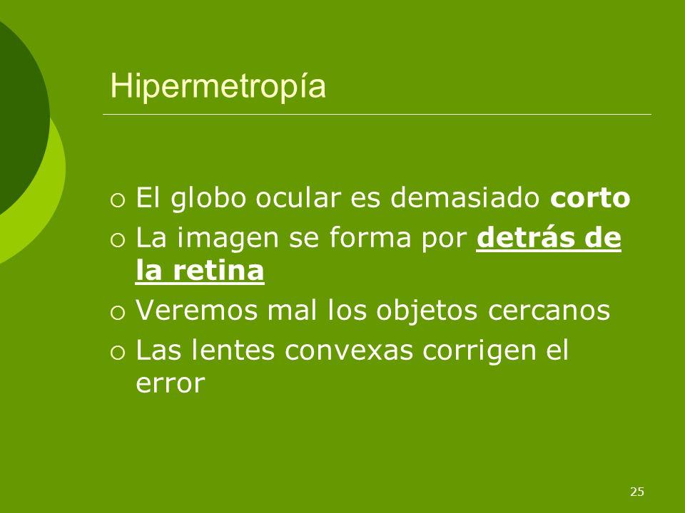Hipermetropía El globo ocular es demasiado corto