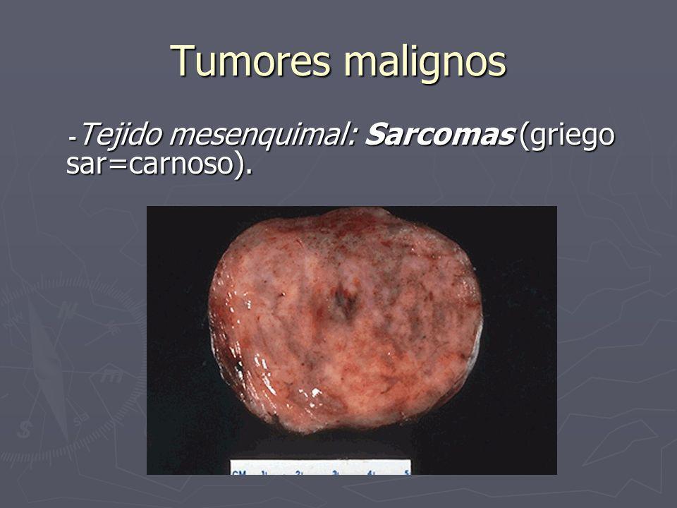 Tumores malignos -Tejido mesenquimal: Sarcomas (griego sar=carnoso).