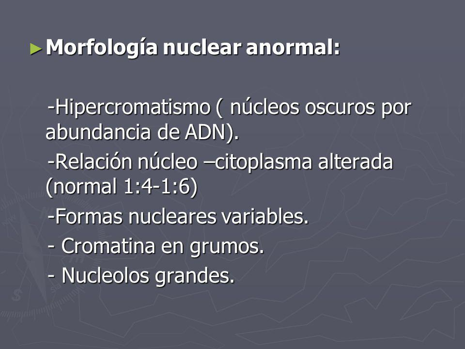 Morfología nuclear anormal:
