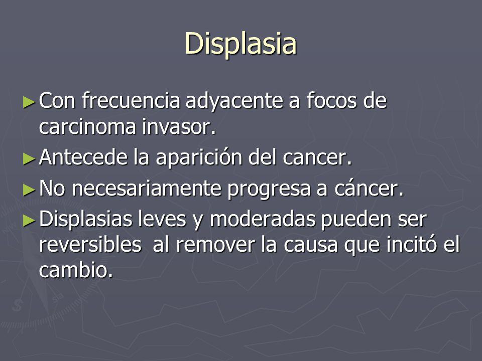 Displasia Con frecuencia adyacente a focos de carcinoma invasor.