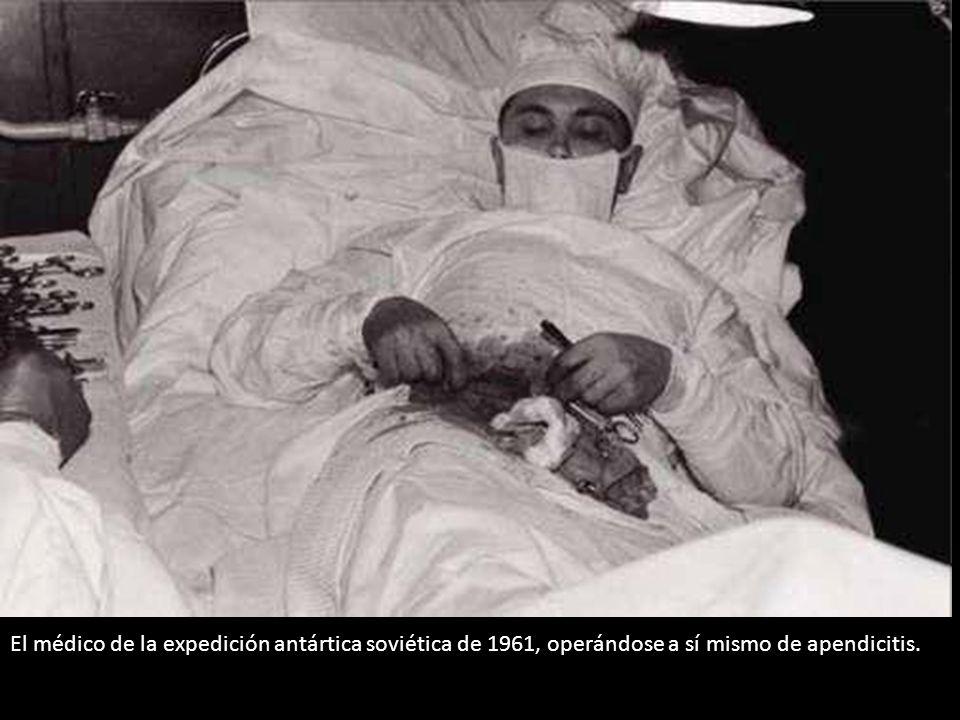 El médico de la expedición antártica soviética de 1961, operándose a sí mismo de apendicitis.