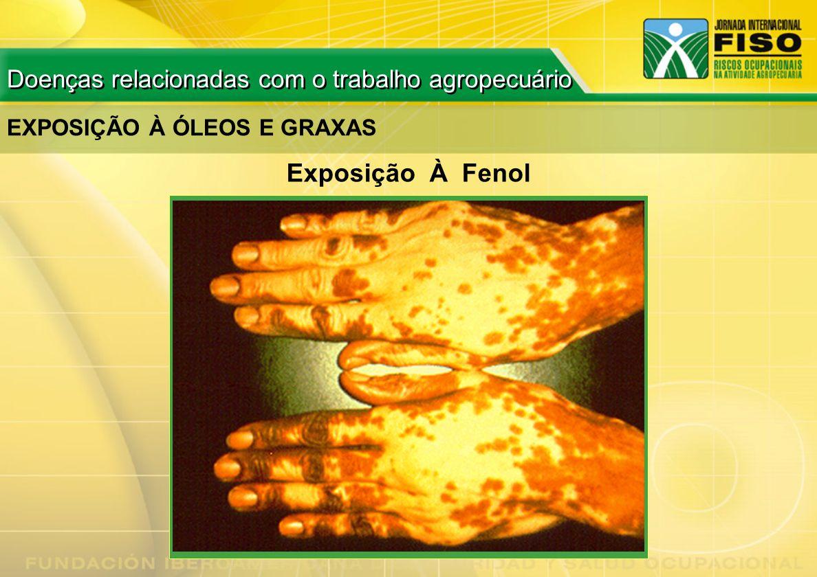 Exposição À Fenol Doenças relacionadas com o trabalho agropecuário