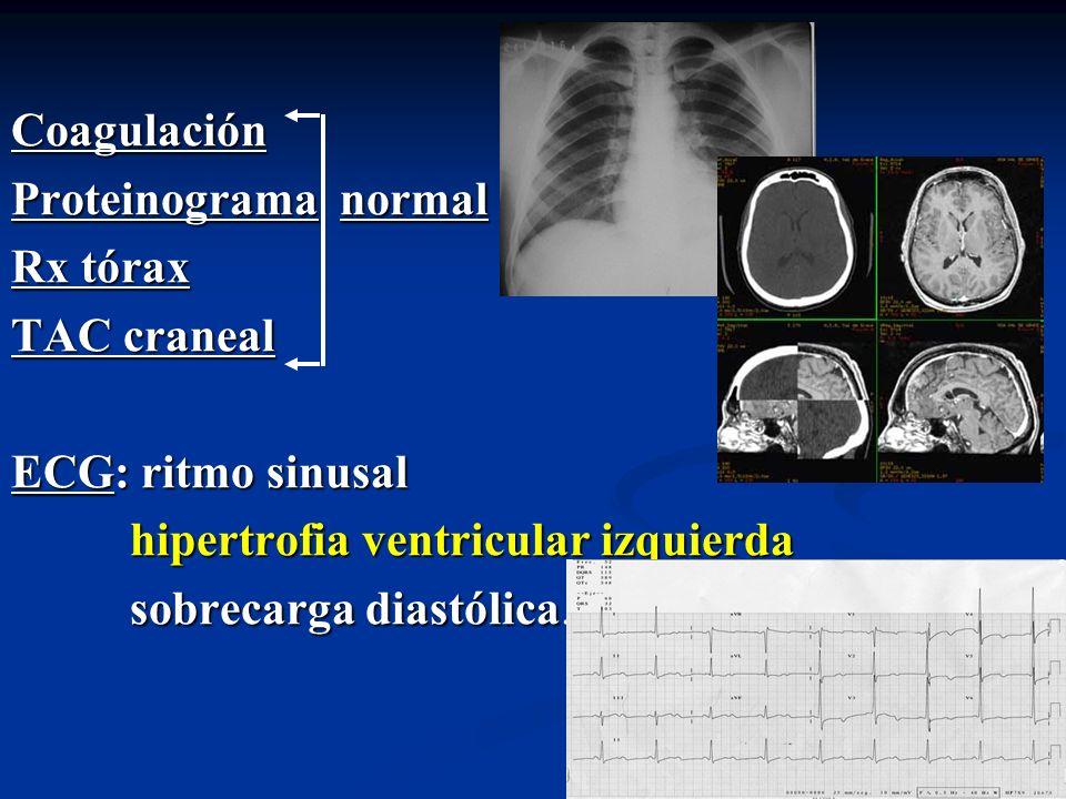 Coagulación Proteinograma normal Rx tórax TAC craneal ECG: ritmo sinusal hipertrofia ventricular izquierda sobrecarga diastólica.