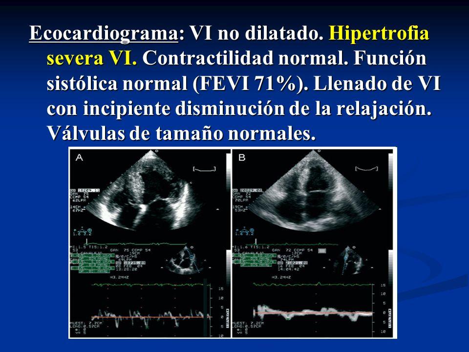 Ecocardiograma: VI no dilatado. Hipertrofia severa VI