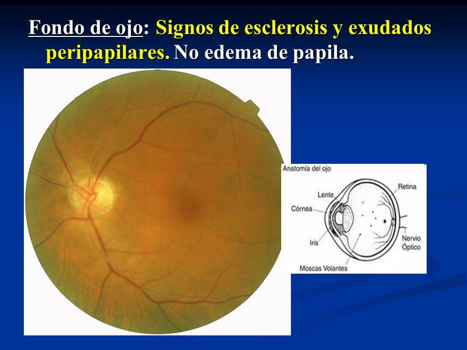 Fondo de ojo: Signos de esclerosis y exudados peripapilares