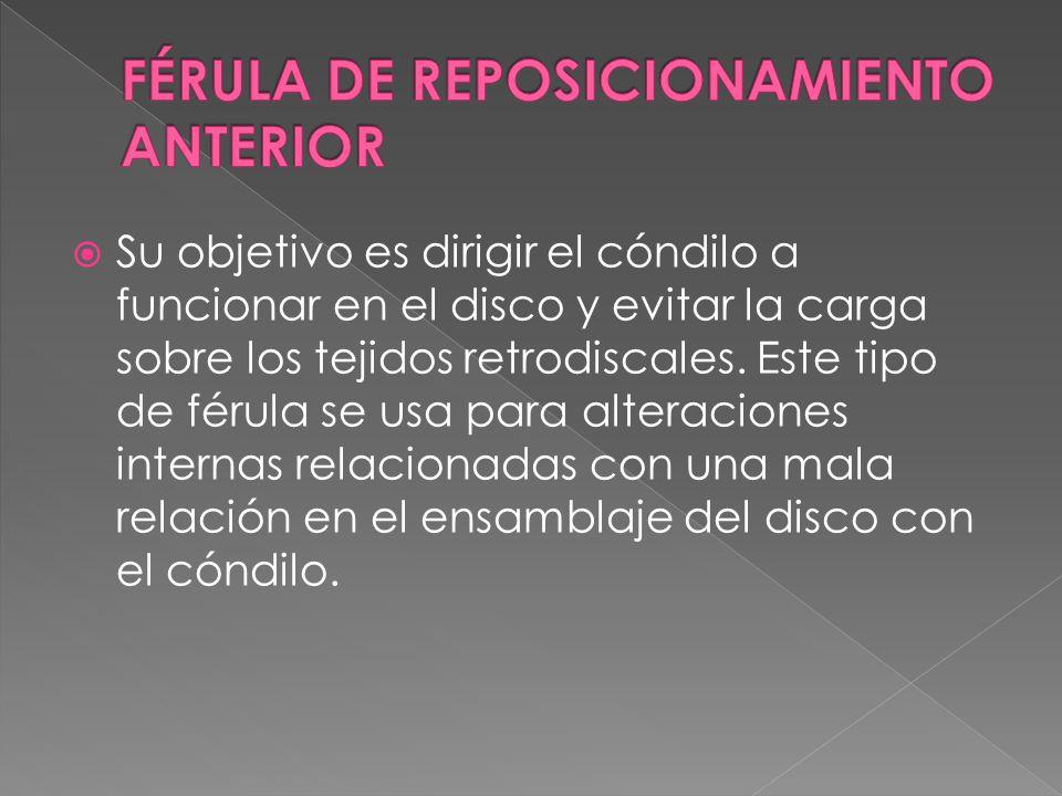 FÉRULA DE REPOSICIONAMIENTO ANTERIOR