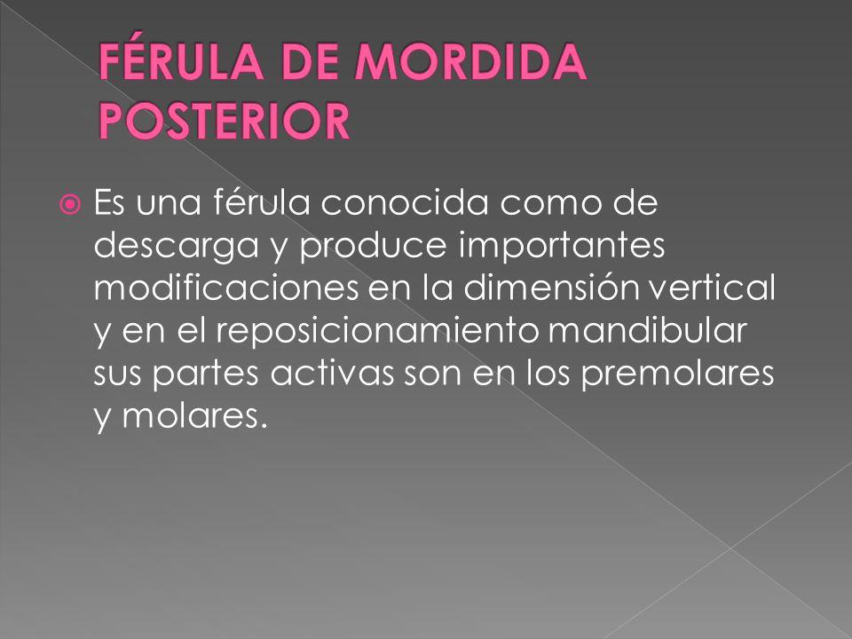 FÉRULA DE MORDIDA POSTERIOR