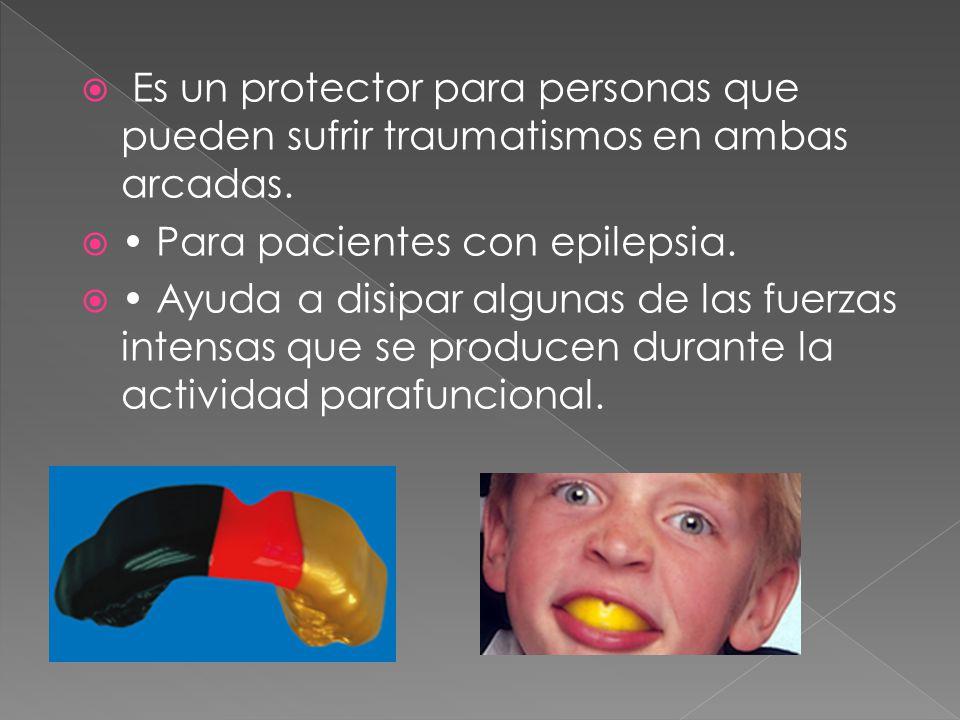 Es un protector para personas que pueden sufrir traumatismos en ambas arcadas.
