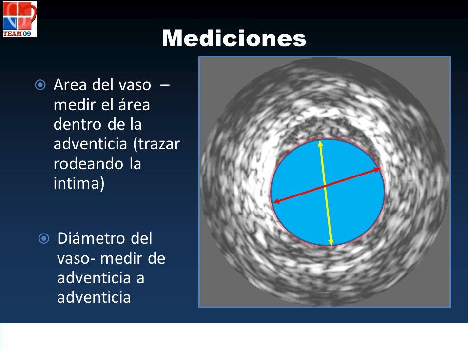 Mediciones Area del vaso – medir el área dentro de la adventicia (trazar rodeando la intima) Diámetro del vaso- medir de adventicia a adventicia.