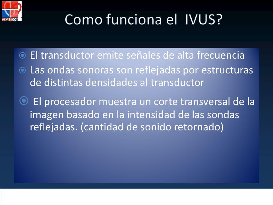 Como funciona el IVUS El transductor emite señales de alta frecuencia.