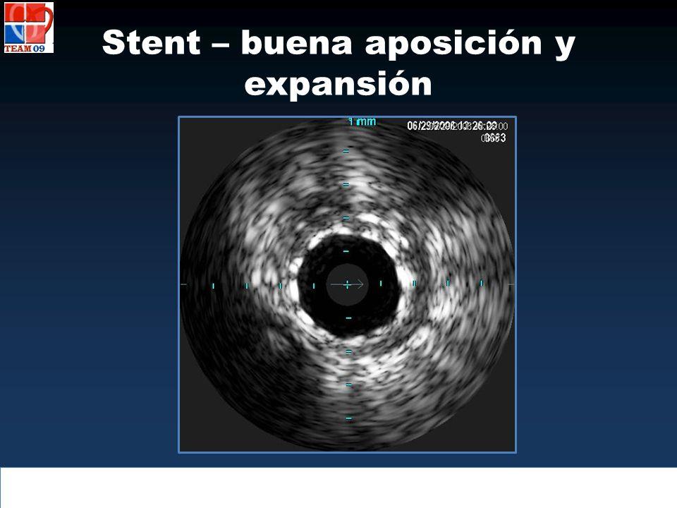 Stent – buena aposición y expansión