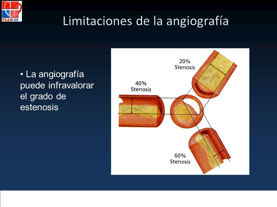 Limitaciones de la angiografía