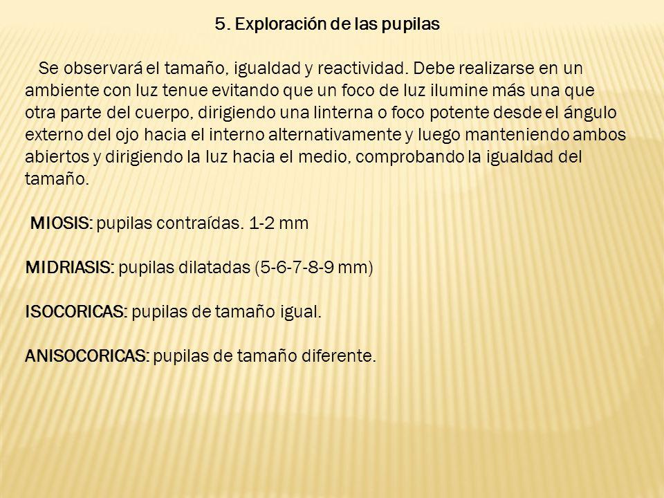5. Exploración de las pupilas