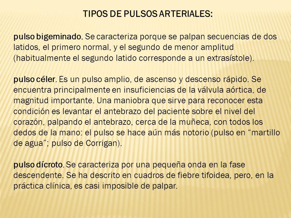 TIPOS DE PULSOS ARTERIALES: