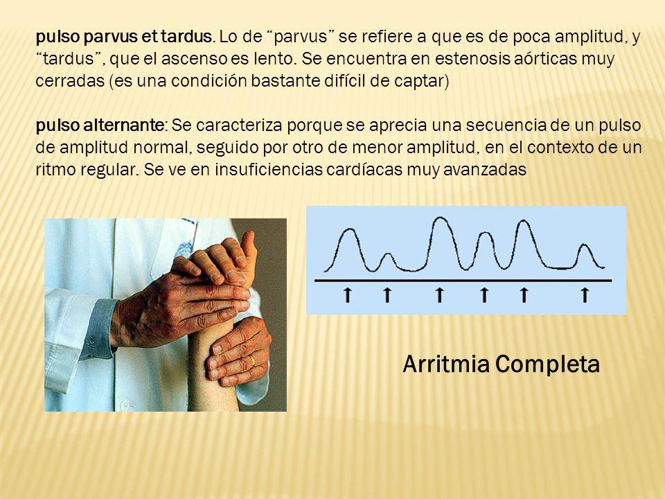 pulso parvus et tardus. Lo de parvus se refiere a que es de poca amplitud, y tardus , que el ascenso es lento. Se encuentra en estenosis aórticas muy cerradas (es una condición bastante difícil de captar)