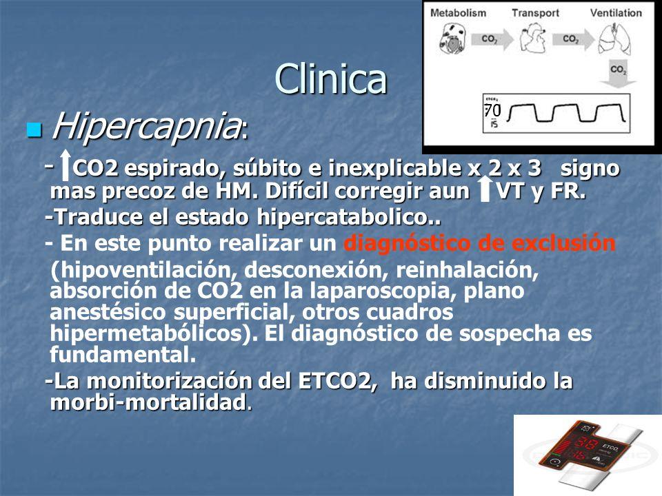 Clinica 70. Hipercapnia: - CO2 espirado, súbito e inexplicable x 2 x 3 signo mas precoz de HM. Difícil corregir aun VT y FR.