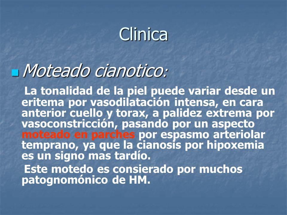 Clinica Moteado cianotico: