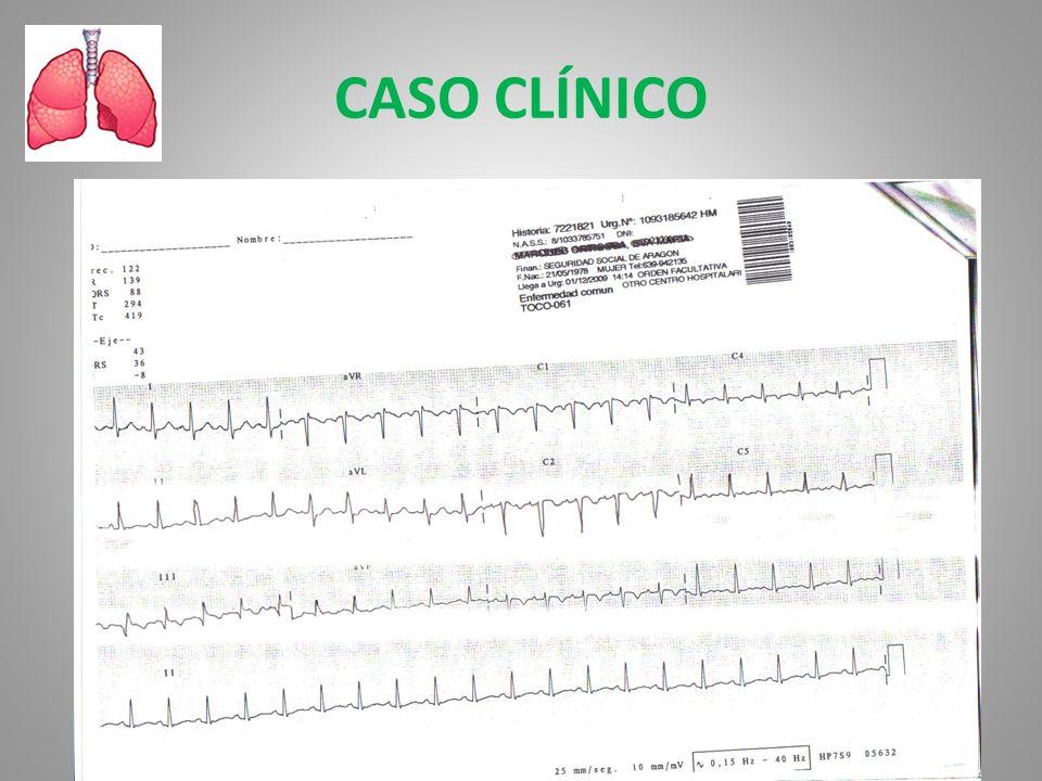 CASO CLÍNICO RS a 120 lpm. QRS: normal. BIRDHH .