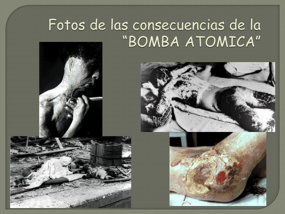 Fotos de las consecuencias de la BOMBA ATOMICA