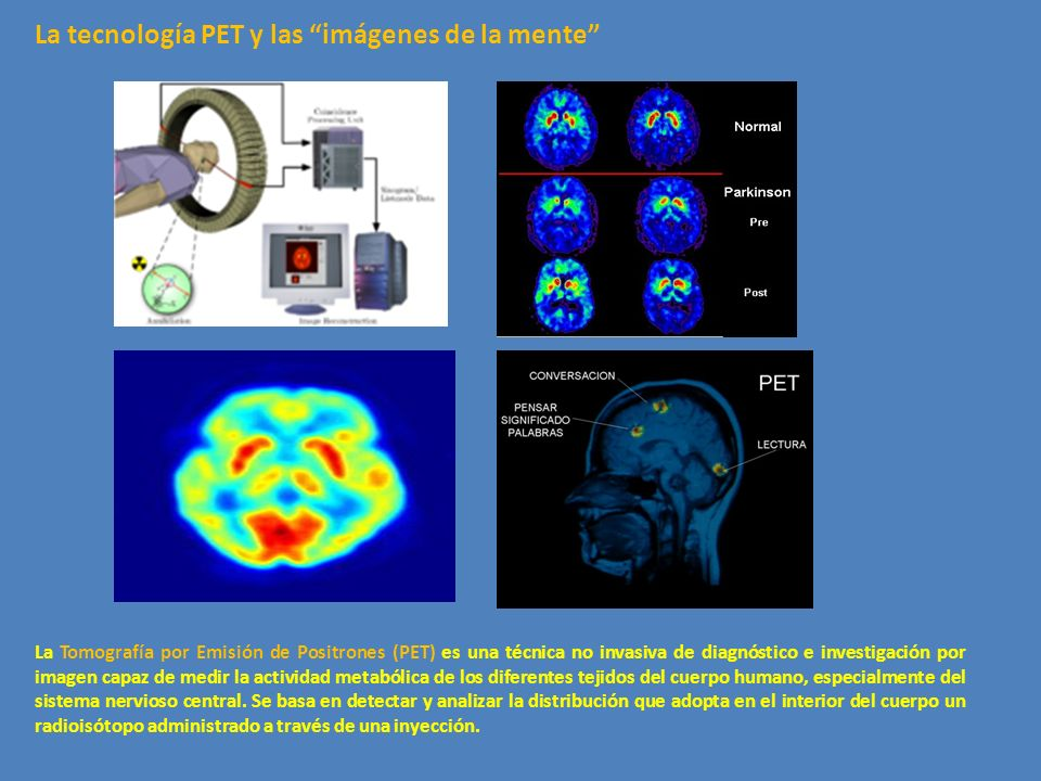 La tecnología PET y las imágenes de la mente