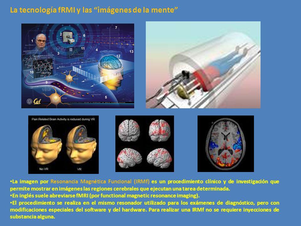 La tecnología fRMI y las imágenes de la mente