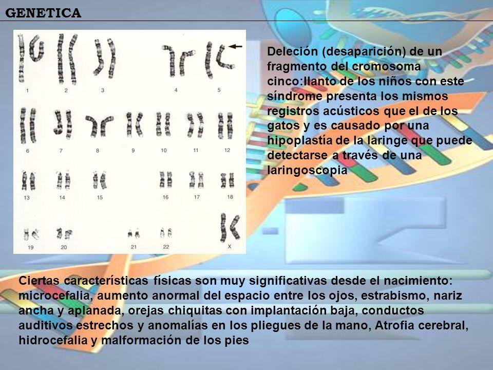 Deleción (desaparición) de un fragmento del cromosoma cinco:llanto de los niños con este síndrome presenta los mismos registros acústicos que el de los gatos y es causado por una hipoplastía de la laringe que puede detectarse a través de una laringoscopia