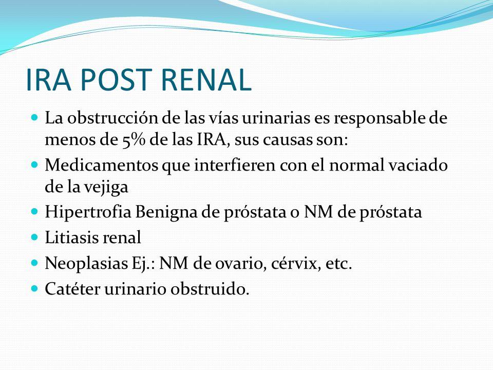 IRA POST RENAL La obstrucción de las vías urinarias es responsable de menos de 5% de las IRA, sus causas son: