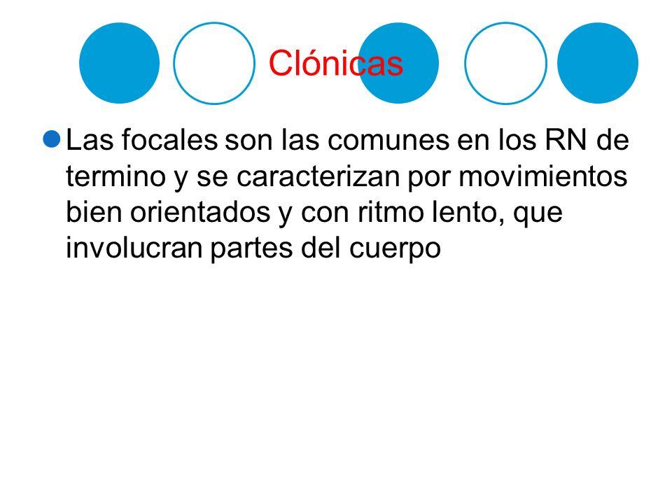 Clónicas