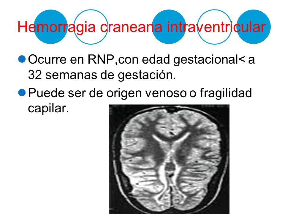 Hemorragia craneana intraventricular