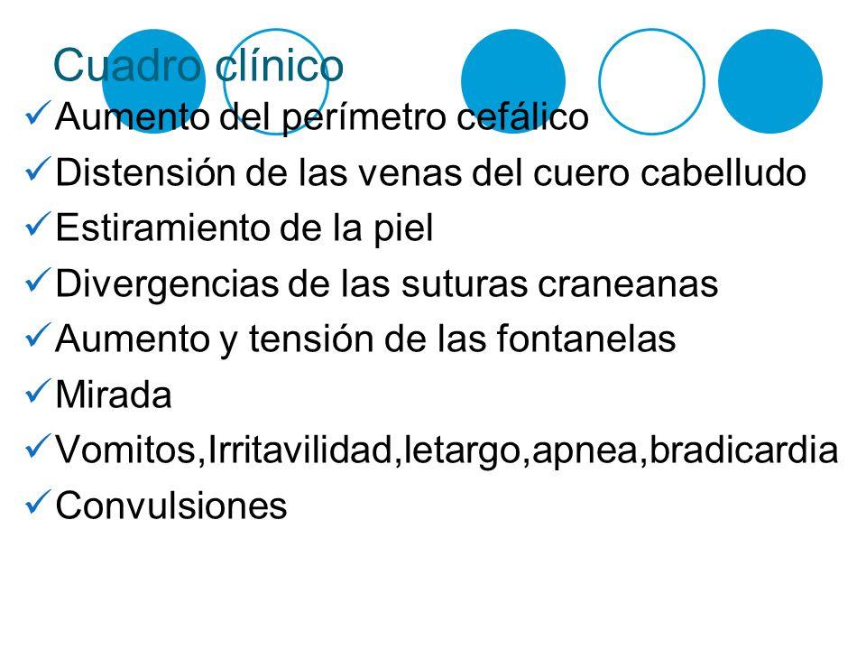 Cuadro clínico Aumento del perímetro cefálico
