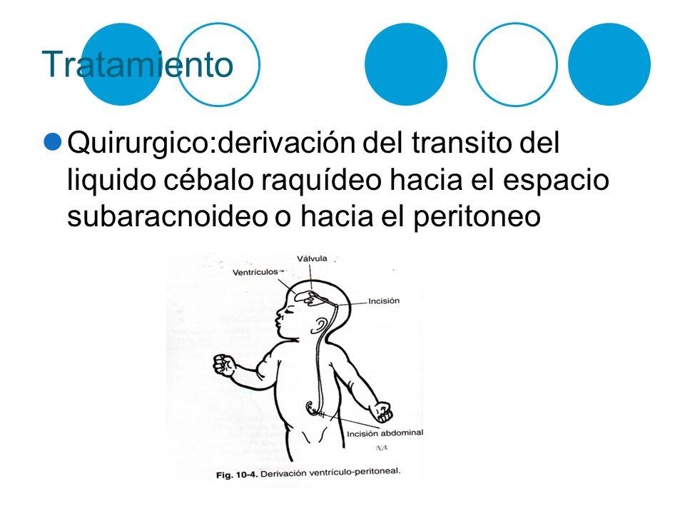 Tratamiento Quirurgico:derivación del transito del liquido cébalo raquídeo hacia el espacio subaracnoideo o hacia el peritoneo.