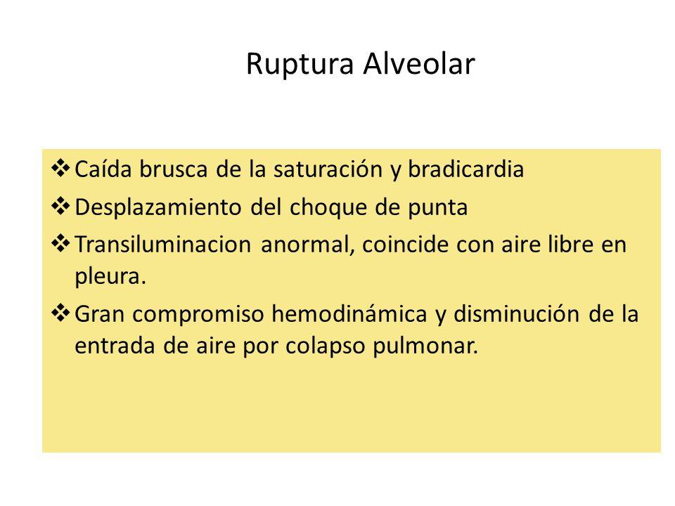Ruptura Alveolar Caída brusca de la saturación y bradicardia