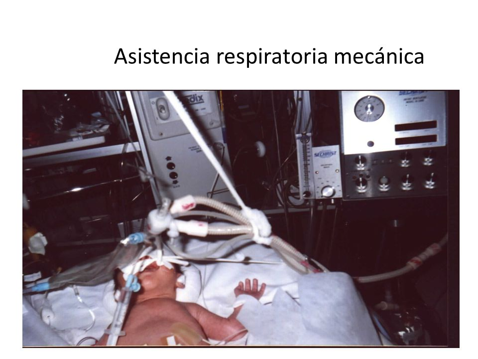 Asistencia respiratoria mecánica