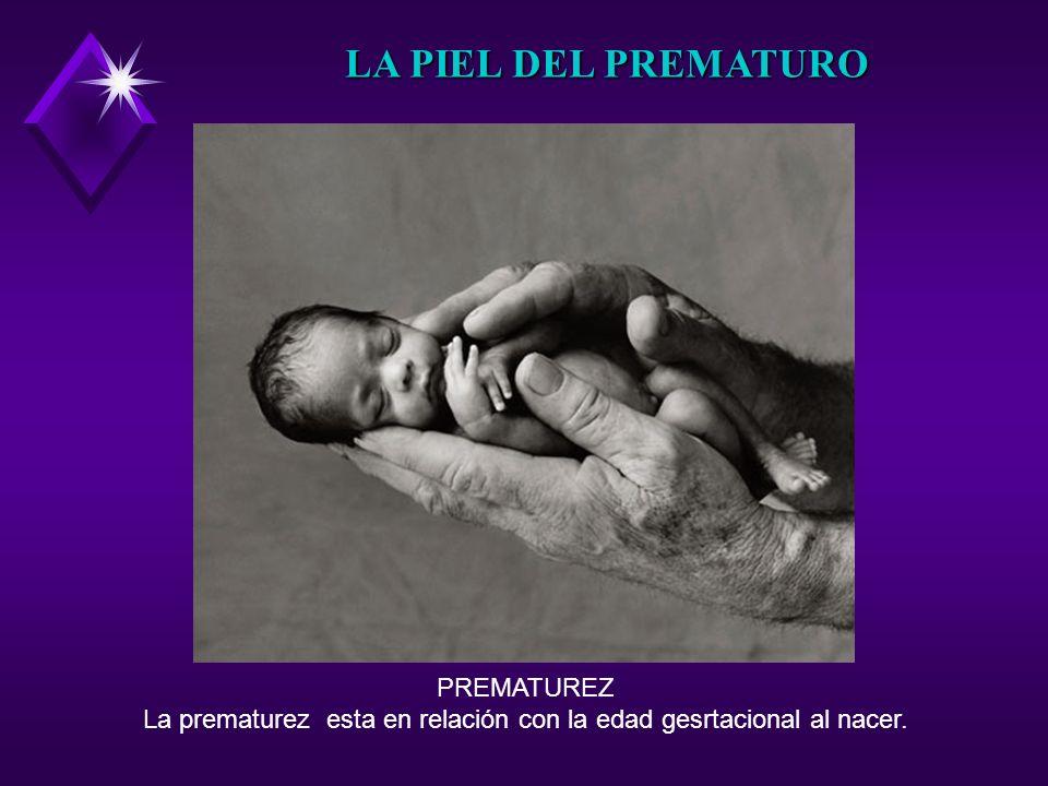 La prematurez esta en relación con la edad gesrtacional al nacer.
