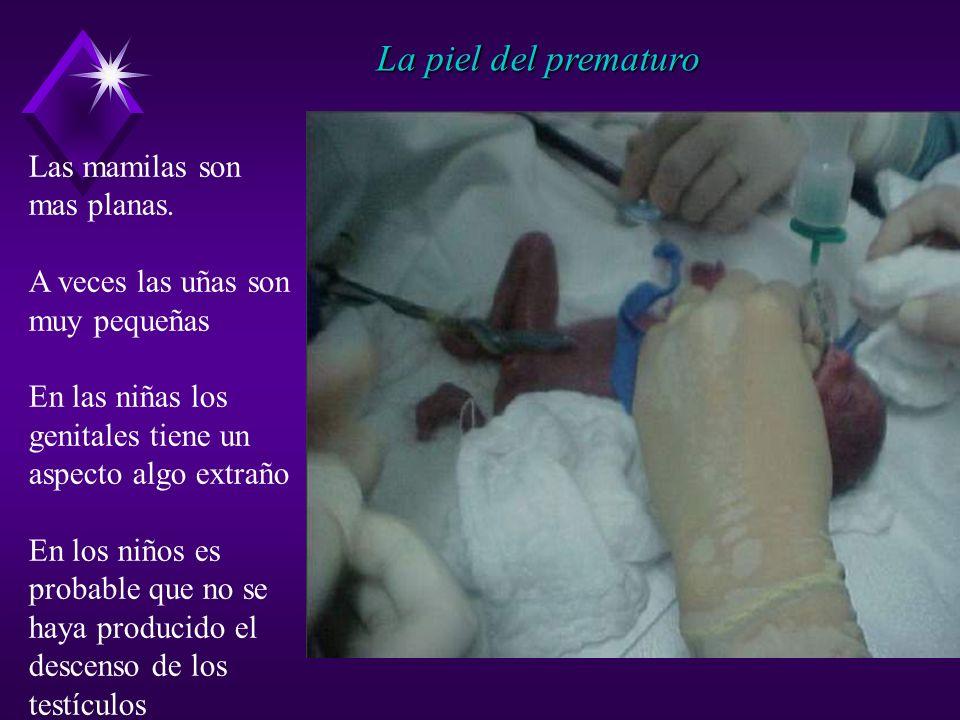 La piel del prematuro Las mamilas son mas planas.