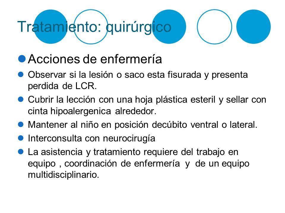Tratamiento: quirúrgico
