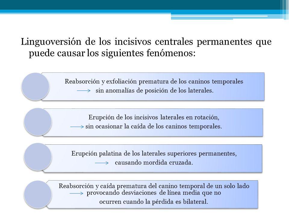 Linguoversión de los incisivos centrales permanentes que puede causar los siguientes fenómenos: