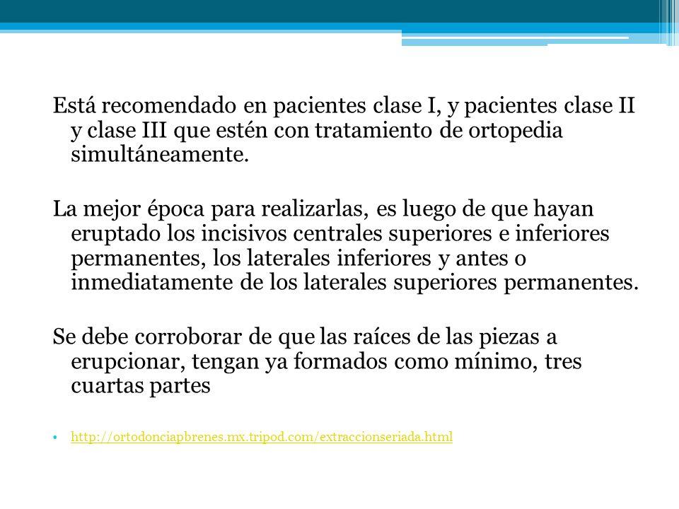 Está recomendado en pacientes clase I, y pacientes clase II y clase III que estén con tratamiento de ortopedia simultáneamente.