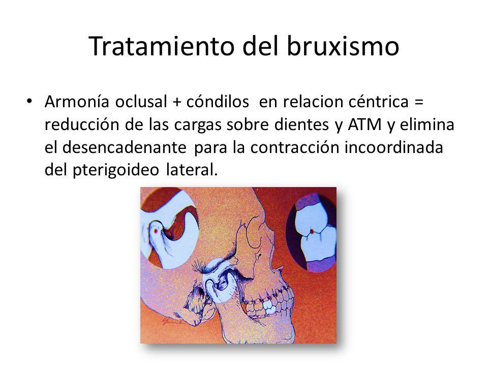 Tratamiento del bruxismo