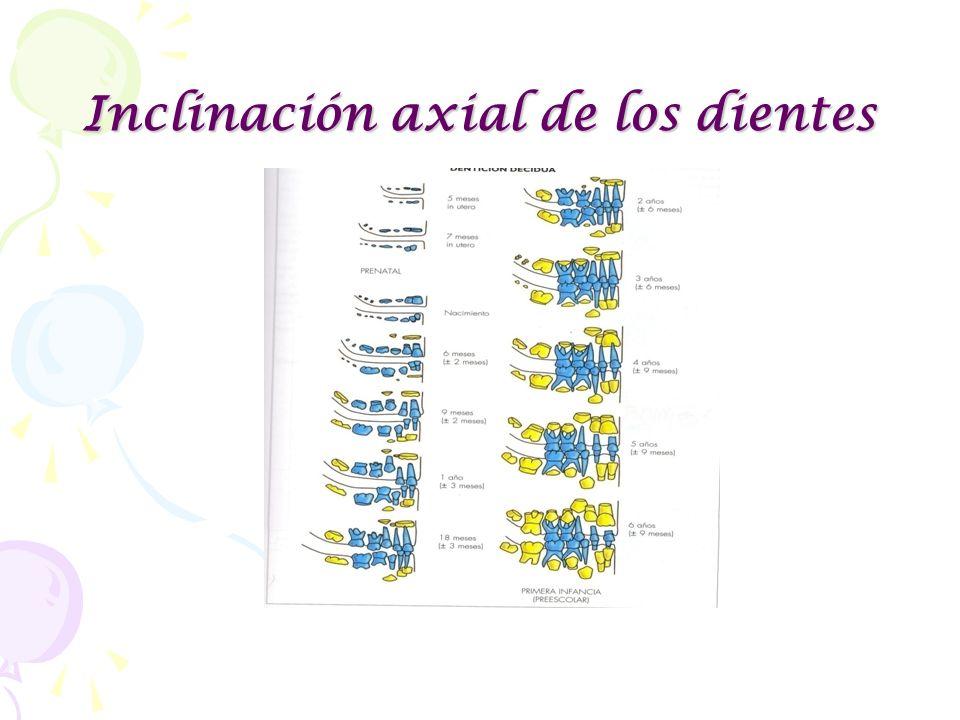 Inclinación axial de los dientes